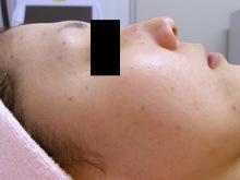 美容外科スタッフの日々