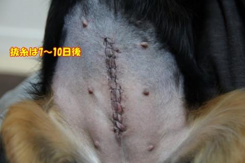 1014避妊手術