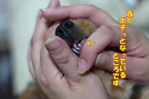 0727 歯がぬけました