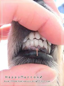 下の前歯2