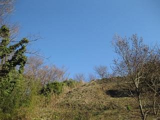 肋骨下部痛 原因 鍼灸治療 鍼灸(はりきゅう)治療院 東京都葛飾区東新小岩 新小岩