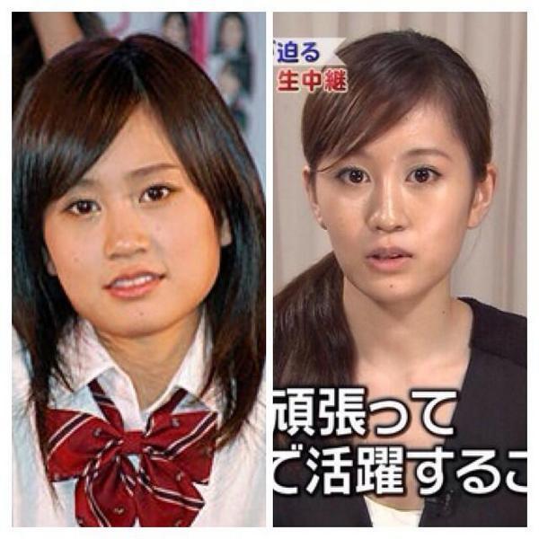 昔の前田敦子の顔とエラが無くなった前田敦子の顔の比較画像