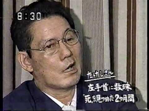交通事故を起こした後、顔面麻痺の状態で会見するビートたけし(北野武)の顔