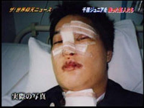 交通事故をおこして治療中の千原ジュニアの顔
