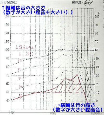 補聴器と集音器の違い1