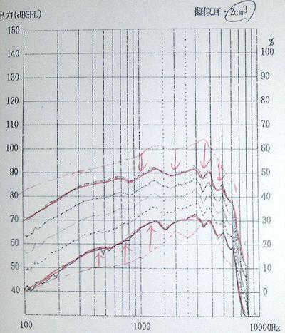 補聴器と集音器の違い4