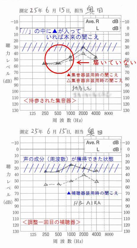 補聴器と集音器違い一目瞭然1