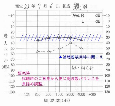 補聴器と集音器違い一目瞭然2