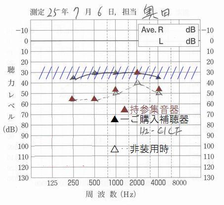 補聴器と集音器違い一目瞭然3