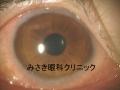 VClimsevere1.jpg
