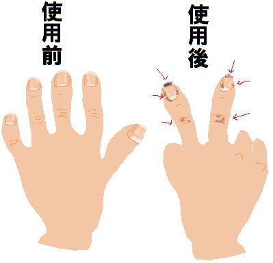 手指 使用前  使用後