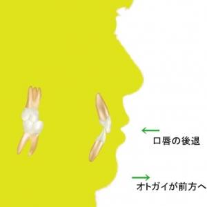 2013.03.23_1485MO治療後