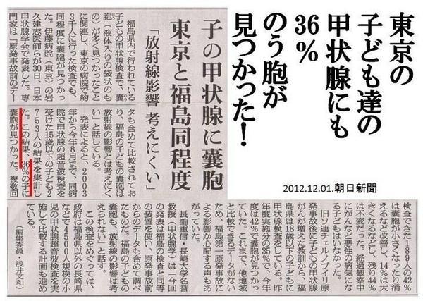 東京の子供36%のう胞